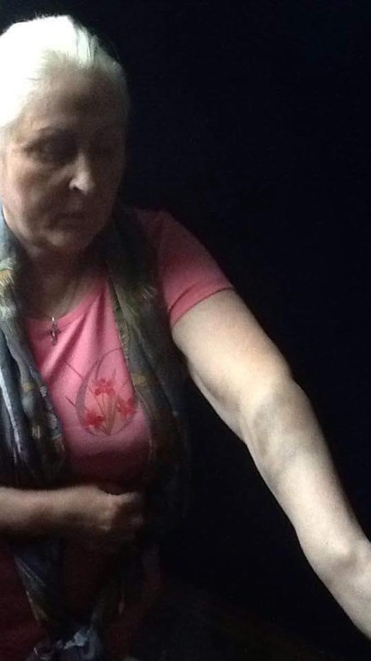 Нели Штепа заявила, что ее избили в Харьковском УИНе (Фото), фото-3